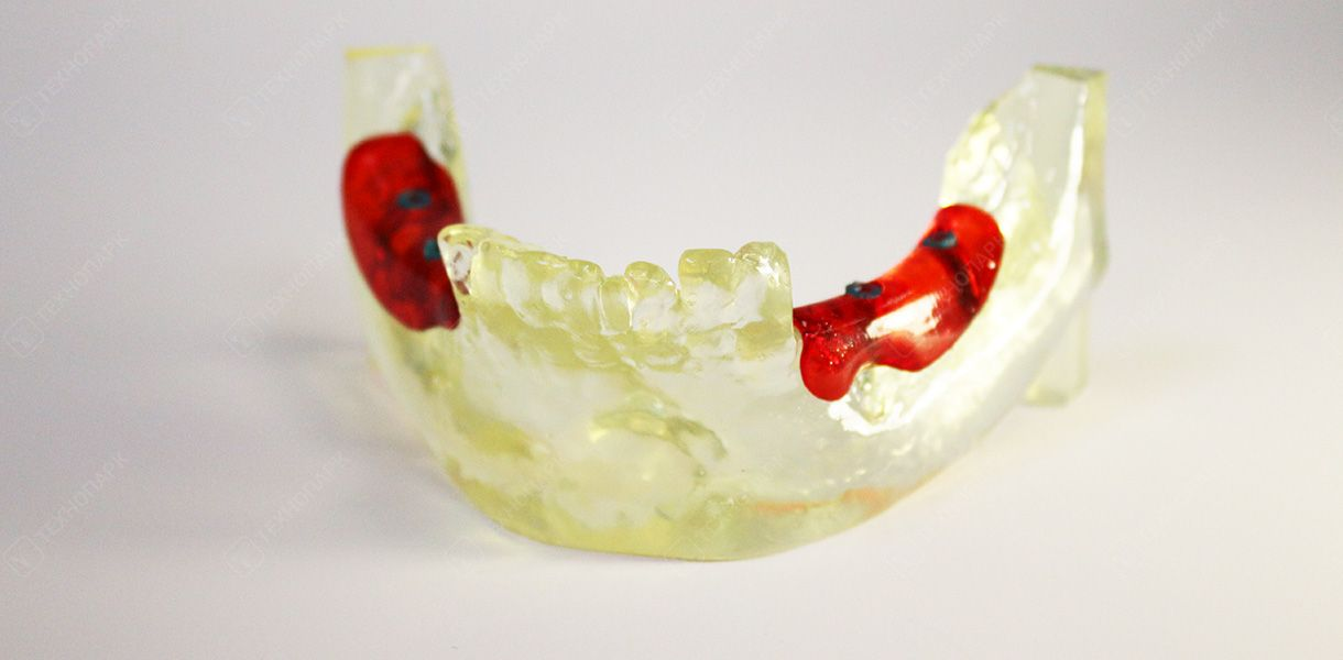 Макет челюсти со вставкой костных имплантов. Материал: фотополимерная смола Formlabs Clear Resin, Formlabs Tough Resin (синие штифты)