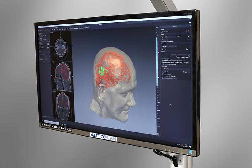 Автоплан - Система хирургической навигации. Разработка оборудования